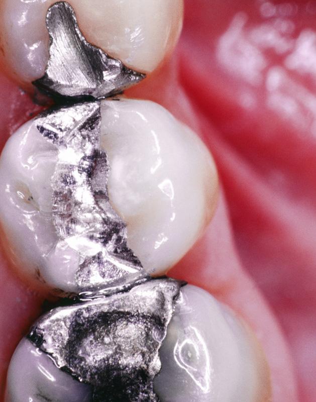 rencontres dentaires avantages et inconvénients de la datation radioactive