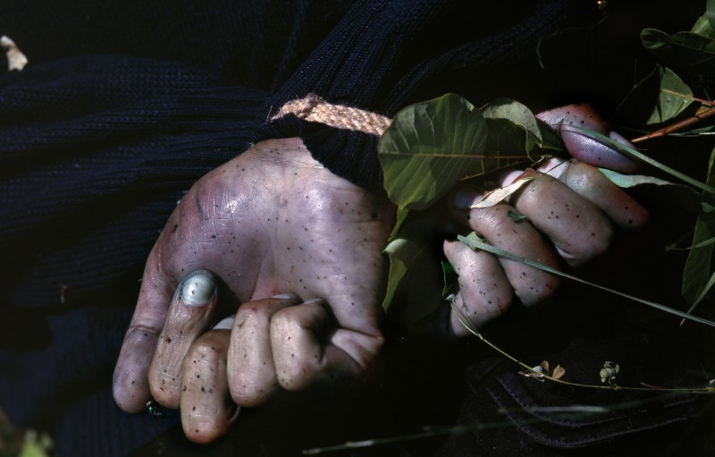 The Hands of a Man Executed in Bernjake/ Brnjaka, between Fortese/Bela Crkva and Rahovec/Orahevac, in June 1999.